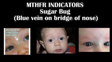Mutacja genu MTHFR u dziecka